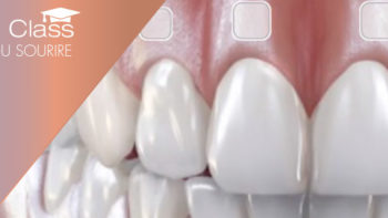 Permalien vers:EASY (Esthetic Analysis by Smile academY) : l'application