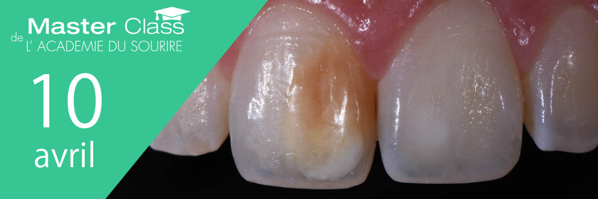masterclass taches blanches hypominéralisations